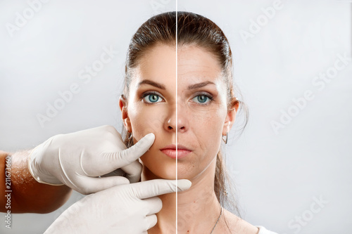 Leinwandbild Motiv Comparison. Portrait of a young woman, comparing youth and old age, the effect of applying Botox injections. Face plasty, injections, stilting, rejuvenation.