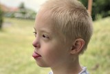 Defect,childcare,medicine and people concept- boy with down syndrome poses for a portrait outdoors. - 212827016
