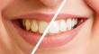 Leinwanddruck Bild - Vergleich von Zähnen vor und nach Zahnreinigung