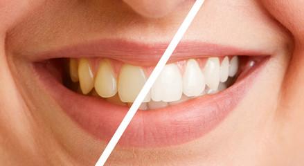 Vergleich von Zähnen vor und nach Zahnreinigung © Robert Kneschke