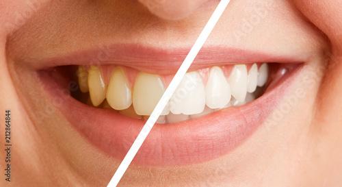 Vergleich von Zähnen vor und nach Zahnreinigung - 212864844