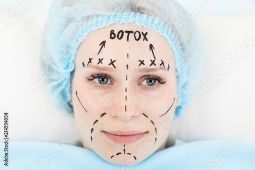 Young woman with highlighter marks all over her face ready for rejuvenation procedure