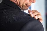 Businessman Brushing Off Fallen Dandruff On Shoulder