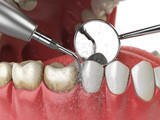 Professional teeth cleaning. Ultrasonic teeth cleaning machine delete dental calculus from human teeth. - 220532678