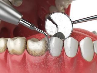 Professional teeth cleaning. Ultrasonic teeth cleaning machine delete dental calculus from human teeth. © Maksym Yemelyanov