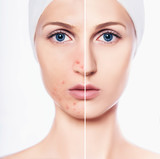 comparison face of beautiful woman with problem acne, and after cosmetology procedure skin are clean. perfect skin and skin with acne - 225898606