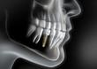 Leinwanddruck Bild - Zahnimplantat - Bildbeispiel
