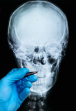 X-ray of human skull with doctor's hand in glove - 229114477