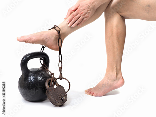 Leinwanddruck Bild Woman's legs with chains and weights. The concept of medicine.