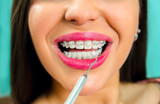 Closeup dental braces check up, young woman smiling with braces in dental clinic  - 231602645