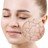 Zoom circle shows dry facial skin before moistening. - 231870048