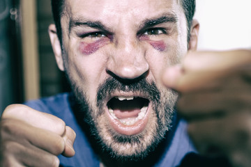 Man's face after the fight and assault. Caucasian male Emotional Portrait with a Real Bruise after the fight. Violence.