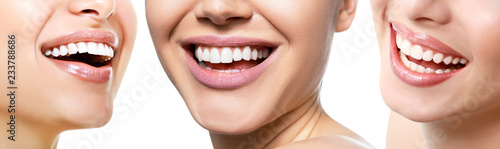 Leinwanddruck Bild Beautiful wide smile of young fresh women with great healthy white teeth, isolated over white background. Smiling happy women. Laughing female mouth.Teeth health, whitening, prosthetics and care