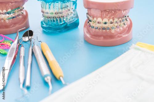orthodontic model and dentist tool - demonstration teeth model of varities of orthodontic bracket or brace - 236027862
