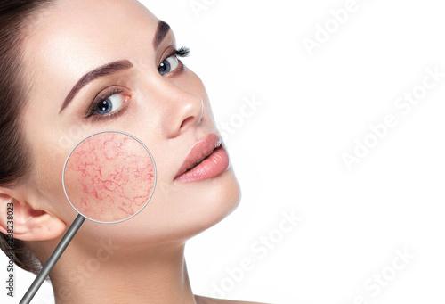 Leinwandbild Motiv magnifying glass showing couperose on womans face
