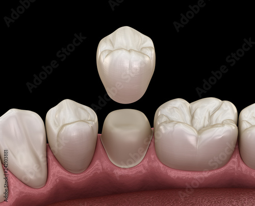 mata magnetyczna Dental crown premolar tooth assembly process. Medically accurate 3D illustration of human teeth treatment