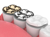 3d render of teeth with onlay - 243271067