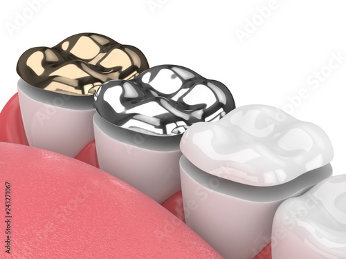3d render of teeth with onlay