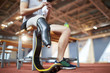 Handicapped right leg of young paralympic sportsman having break after training on stadium