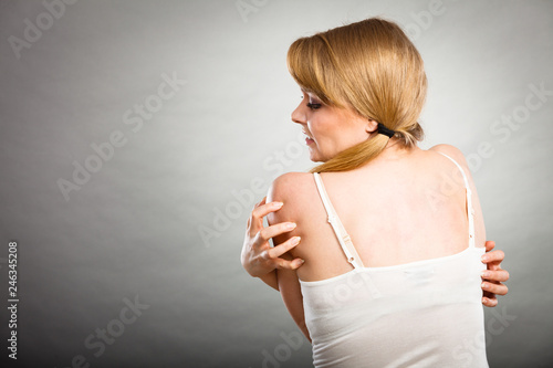 Leinwanddruck Bild woman scratching her itchy back with allergy rash