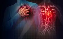 """Постер, картина, фотообои """"Heart Attack Concept"""""""