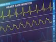 EKG cardiac frequency