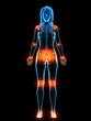 Leinwandbild Motiv 3d rendered medically accurate illustration of inflamed ligaments