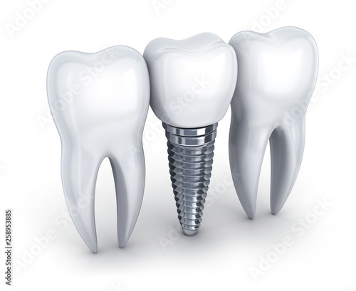 Dental implant and tooth © Vlad Kochelaevskiy