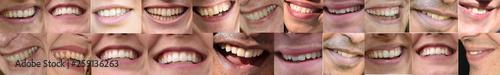 canvas print picture lachen, Mund und Lippen, Zähne
