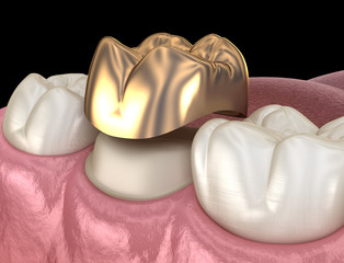 Golden crown molar tooth assembly process. Medically accurate 3D illustration of human teeth treatment